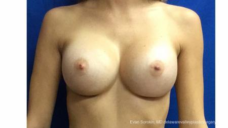 Philadelphia Breast Augmentation 13180 -  After Image 1