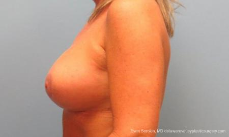 Philadelphia Breast Lift and Augmentation 9398 -  After Image 5