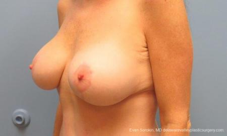 Philadelphia Breast Lift and Augmentation 9486 -  After Image 4