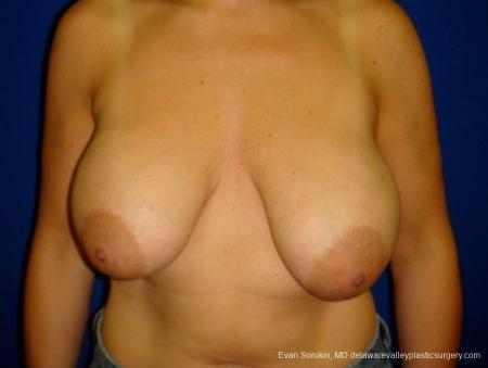 Philadelphia Breast Lift and Augmentation 8696 - Before Image 1