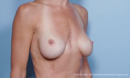 Philadelphia Breast Augmentation 9454 - Before Image 2