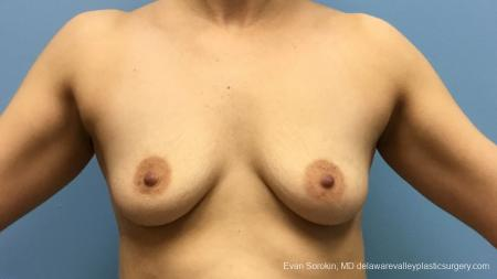 Philadelphia Breast Augmentation 12541 - Before Image 1