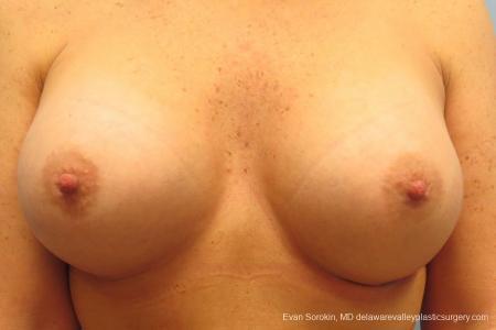 Philadelphia Breast Augmentation 9406 -  After Image 1