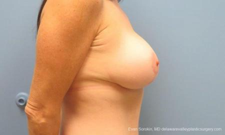 Philadelphia Breast Lift and Augmentation 9486 -  After Image 3