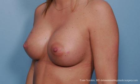 Philadelphia Breast Augmentation 9379 -  After Image 3