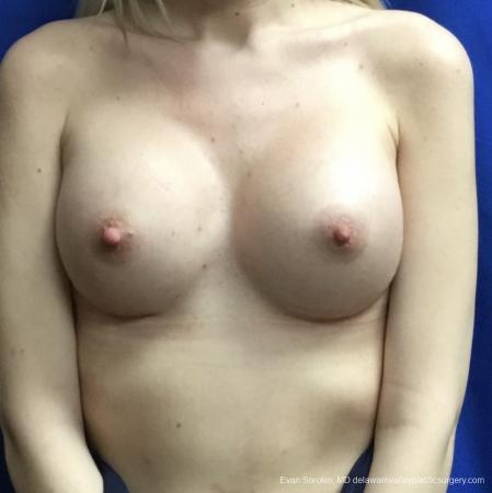 Breast Augmentation: Patient 166 - After Image 1
