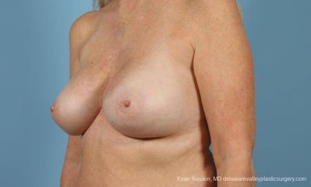 Philadelphia Breast Augmentation 9457 -  After Image 2