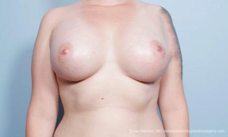 Philadelphia Breast Augmentation 9419 -  After Image 1