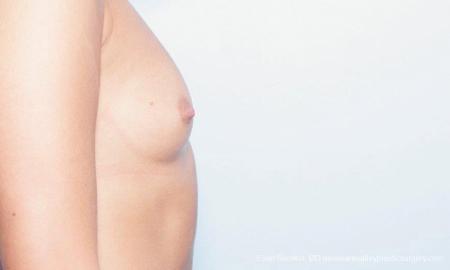 Philadelphia Breast Augmentation 9356 - Before Image 3