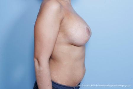 Philadelphia Breast Lift and Augmentation 8688 -  After Image 4