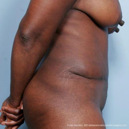 Philadelphia Abdominoplasty 9477 -  After Image 3