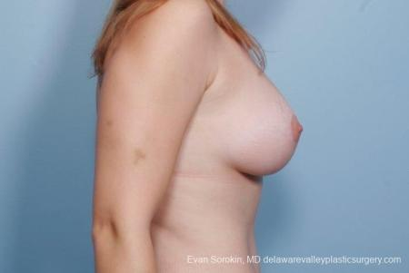 Philadelphia Breast Lift and Augmentation 8680 -  After Image 4