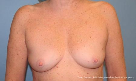Philadelphia Breast Augmentation 9600 - Before Image 1