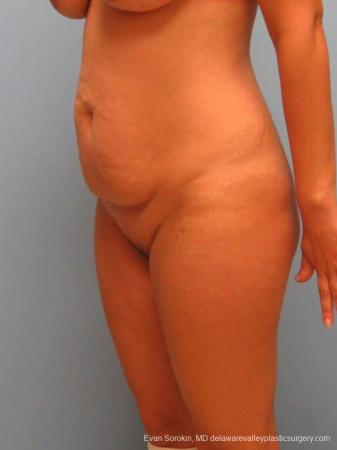 Philadelphia Abdominoplasty 9460 - Before Image 4