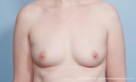 Philadelphia Breast Augmentation 9418 - Before Image 1