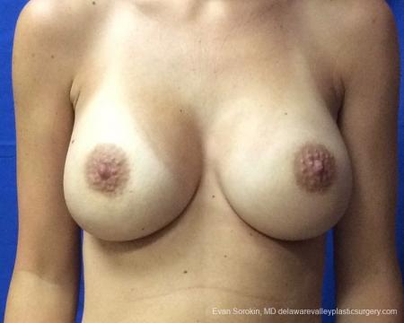 Philadelphia Breast Augmentation 13067 -  After Image 1