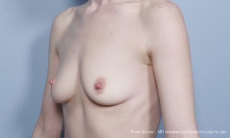 Philadelphia Breast Augmentation 8781 - Before Image 3