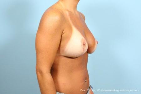 Philadelphia Breast Lift and Augmentation 8687 -  After Image 2