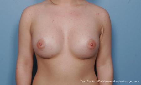 Philadelphia Breast Augmentation 9378 -  After Image 1