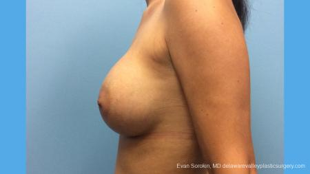 Breast Augmentation: Patient 137 - After Image 3