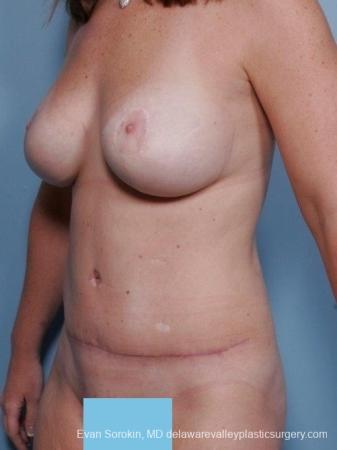 Philadelphia Mommy Makeover 8674 -  After Image 3