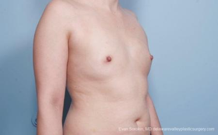 Breast Augmentation: Patient 54 - Before Image 2