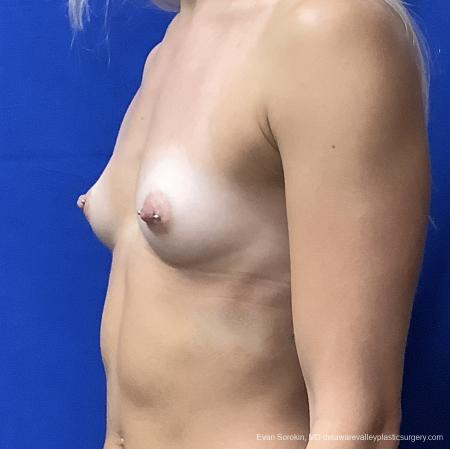 Breast Augmentation: Patient 164 - Before and After Image 3