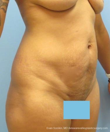 Philadelphia Abdominoplasty 8825 - Before Image 2