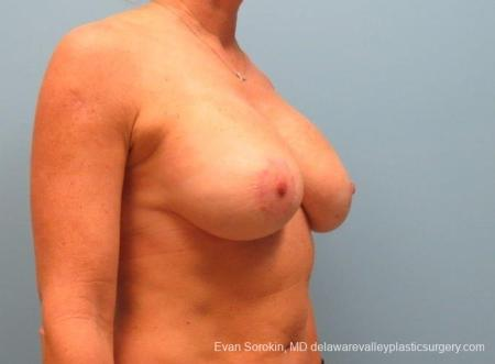 Philadelphia Breast Lift and Augmentation 8690 -  After Image 2