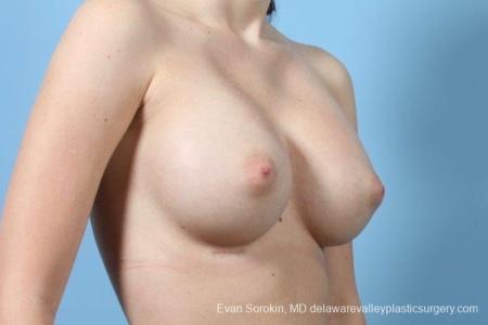 Philadelphia Breast Augmentation 8766 -  After Image 2