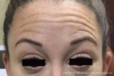 BOTOX® Cosmetic: Patient 3 - Before Image