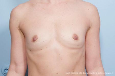 Philadelphia Breast Augmentation 8651 - Before Image 1
