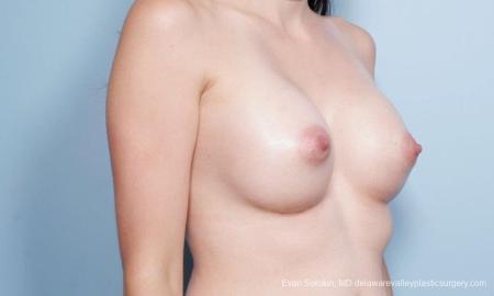 Philadelphia Breast Augmentation 9175 -  After Image 2