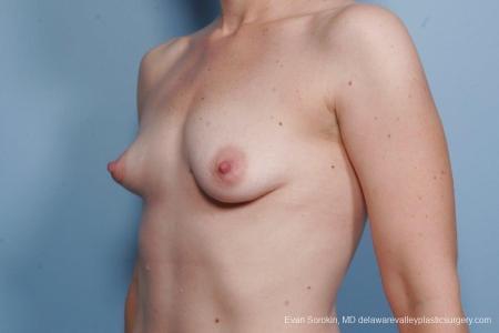 Philadelphia Breast Lift and Augmentation 8686 - Before Image 3