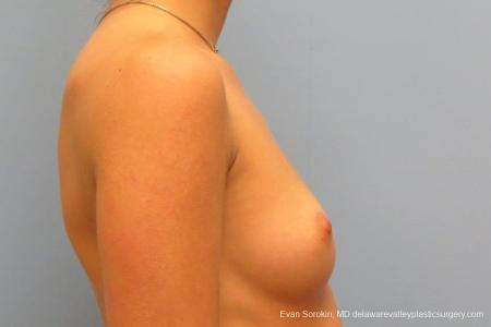 Philadelphia Breast Augmentation 8666 - Before Image 4