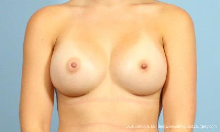 Philadelphia Breast Augmentation 8641 - After Image