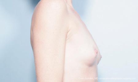 Philadelphia Breast Augmentation 9359 - Before Image 3