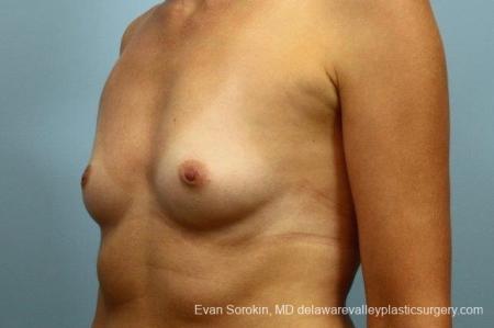 Philadelphia Breast Augmentation 8764 - Before Image 3