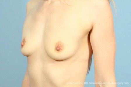 Philadelphia Breast Augmentation 8659 - Before Image 3