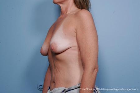Philadelphia Breast Lift and Augmentation 9438 - Before Image 4