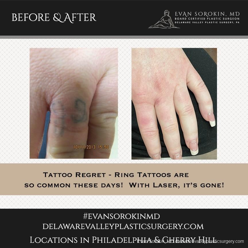 Tattoo Removal: Patient 8 - Before and After Image