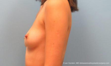 Philadelphia Breast Augmentation 9342 - Before and After Image 5