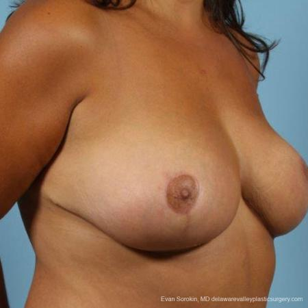 Philadelphia Breast Reduction 9470 -  After Image 4