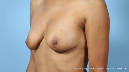 Philadelphia Breast Augmentation 9288 - Before Image 4