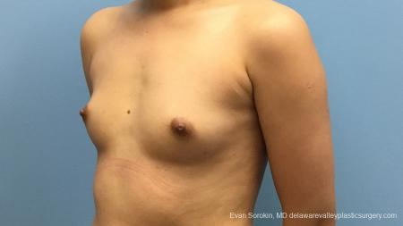 Philadelphia Breast Augmentation 13172 - Before Image 4
