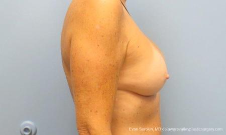 Philadelphia Breast Augmentation 9549 -  After Image 3