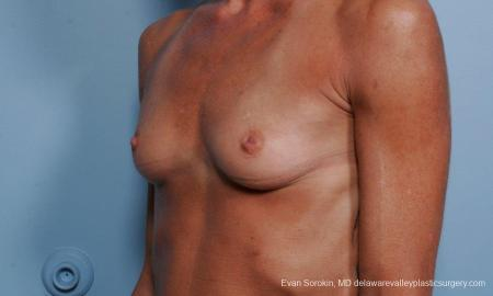 Philadelphia Breast Augmentation 8656 - Before and After Image 3