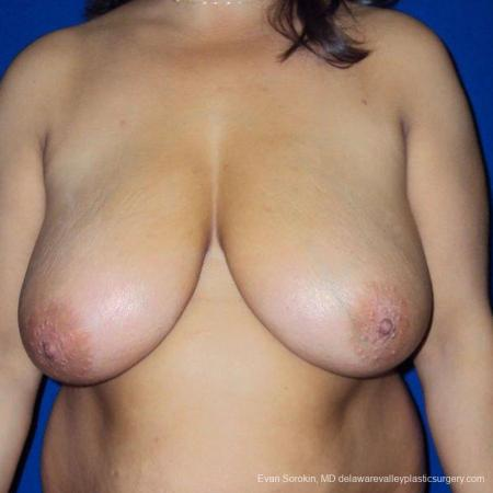 Philadelphia Breast Reduction 9470 - Before Image