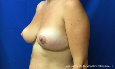 Philadelphia Breast Reduction 12512 -  After Image 3