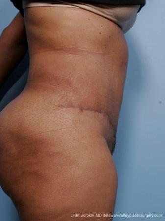 Philadelphia Abdominoplasty 9461 -  After Image 3